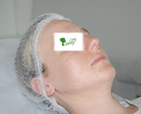 Skuteczne leczenie trądziku